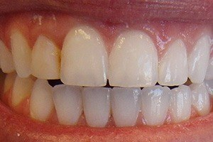 Closeup of perfectly aligned teeth