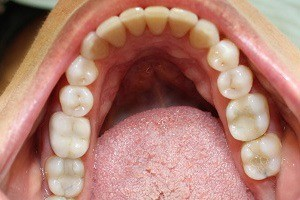 Teeth after crowding is corrected
