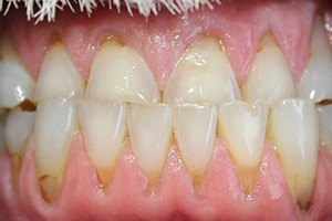 Teeth with dark staining and gum recession