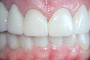 Flawlessly repaired teeth and gums