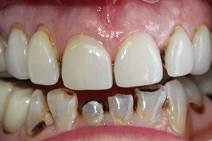 Damaged and decayed teeth