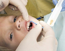 Child receiving fluoride treatments