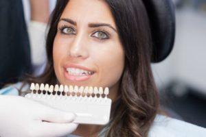 dental patient with veneers