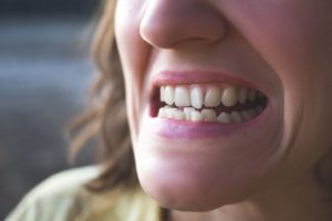 woman with crooked teeth needs Invisalign in Chesterfield