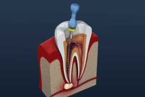 Digital image of a root canal in Chesterfield.